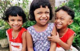 করোনায় পিতার মৃত্যুর এক বছর পূর্ণ, তিন জমজ বোন বলছে বাবা আসবে কবে